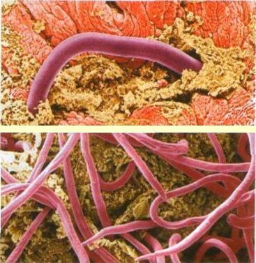 даников очищение от паразитов